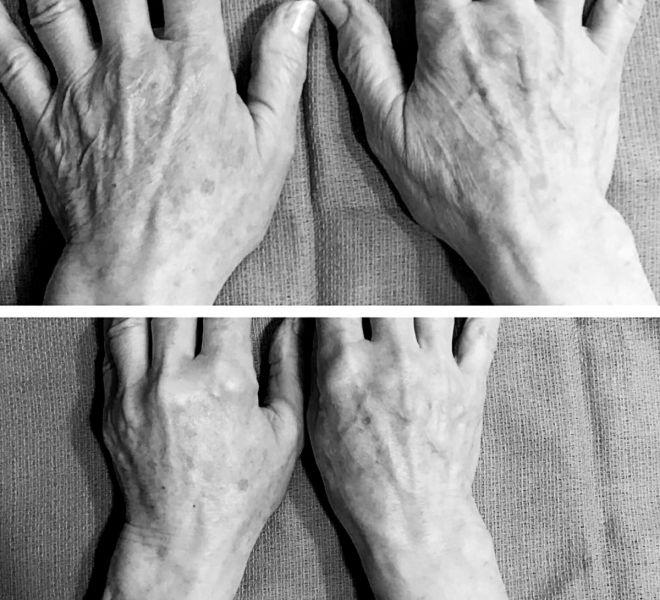 filler b&A2 hands